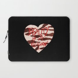 BeautyIsAReligion `ZEBRA HEART` Laptop Sleeve