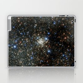 Hubble Peers into the Most Crowded Place in the Milky Way Laptop & iPad Skin