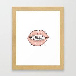Lips vs braces Framed Art Print