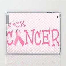 F*ck Cancer Laptop & iPad Skin
