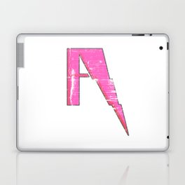 A to Z(iggy) Laptop & iPad Skin
