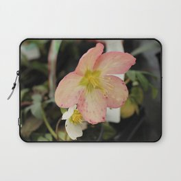 Beauty Part 2 Laptop Sleeve