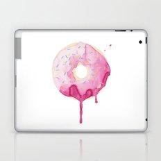 Glazed Laptop & iPad Skin