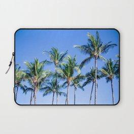 Palms in Living Harmony Laptop Sleeve