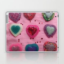 Glitter Hearts Club Laptop & iPad Skin