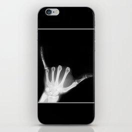 Hang Loose X-Ray iPhone Skin