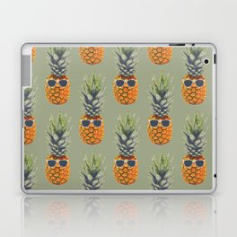 Pineapple aka Agent Ananas Laptop & iPad Skin