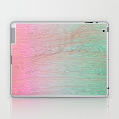 expw Laptop & iPad Skin