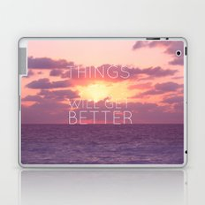 Things will get better Laptop & iPad Skin