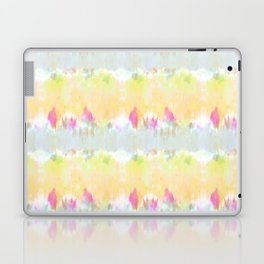 Summer Vibes Tie Dye in Sunshine Yellow Laptop & iPad Skin