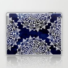 White Lace Medallion on Ink Blue Laptop & iPad Skin