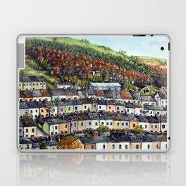 Georgetown, Tredegar Laptop & iPad Skin