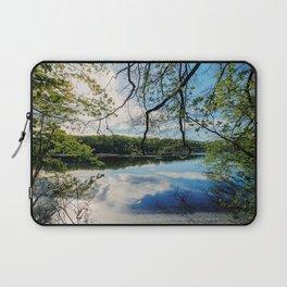 Pond Views Laptop Sleeve