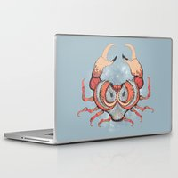 cancer Laptop & iPad Skins featuring Cancer by Vibeke Koehler