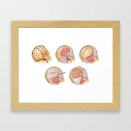 Craniotomy Framed Art Print