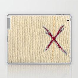 Yarns: XL Wool Laptop & iPad Skin