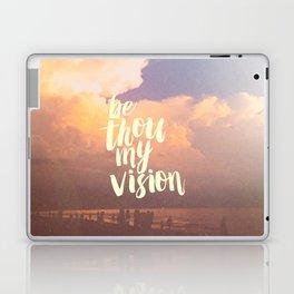 MY VISION Laptop & iPad Skin