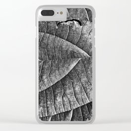 It Hurts Clear iPhone Case
