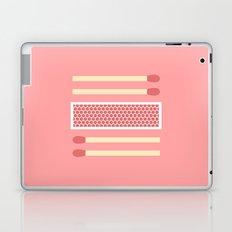 #75 Matches Laptop & iPad Skin