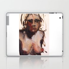 The Approach Laptop & iPad Skin