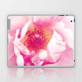 A Rose is a Rose Laptop & iPad Skin