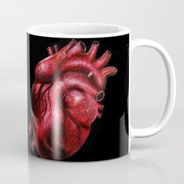 Why I aorta (II) Coffee Mug