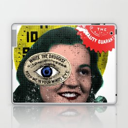 For External Use Only Laptop & iPad Skin