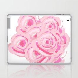 Boca Roses Laptop & iPad Skin