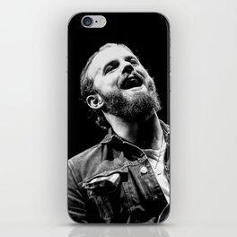 Caleb Followill (Kings of Leon) - I iPhone Skin