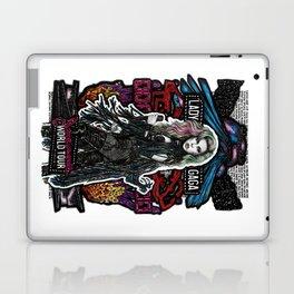 Joanne World Tour Laptop & iPad Skin