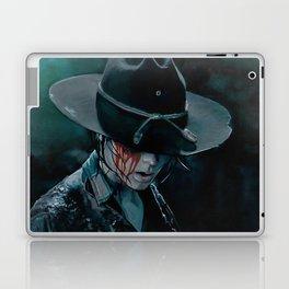 Carl Grimes Shot In The Eye - The Walking Dead Laptop & iPad Skin