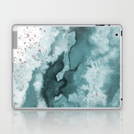 Watercolor meets Glitter - Turquoise Rose Gold - No 2 Laptop & iPad Skin