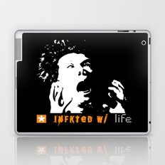 Infkted With Life Laptop & iPad Skin