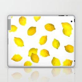 Lemon Watercolor Pattern Laptop & iPad Skin