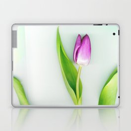 Stretch Laptop & iPad Skin