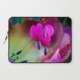 Confession Of Love Laptop Sleeve