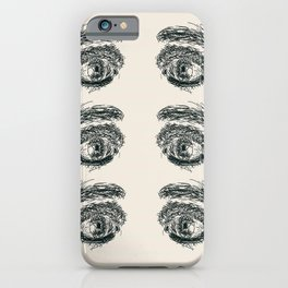 Exhausted  Eyes iPhone Case