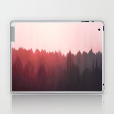 Sun Glare Laptop & iPad Skin