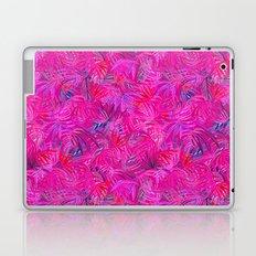 Tropical Pink 2017 Hideaway Laptop & iPad Skin