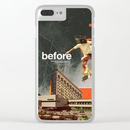 Before Clear iPhone Case