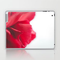 Love Twist Laptop & iPad Skin