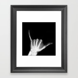 Hang Loose X-Ray Framed Art Print