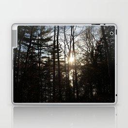 between Laptop & iPad Skin