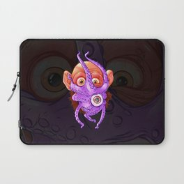 SHTUP Laptop Sleeve