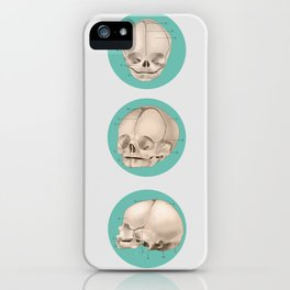 Infantem Calvariam iPhone Case