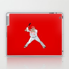 Puljos Laptop & iPad Skin