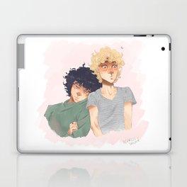 Sudden Realisation of Affection Laptop & iPad Skin