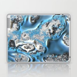 MetalArt 11 blue Laptop & iPad Skin