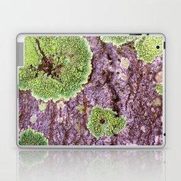 Tree Bark Pattern with Lichen #7 Laptop & iPad Skin