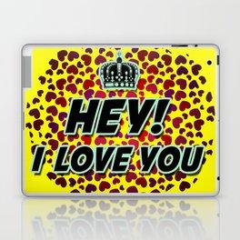 "I Love You ""Hearts"" Laptop & iPad Skin"